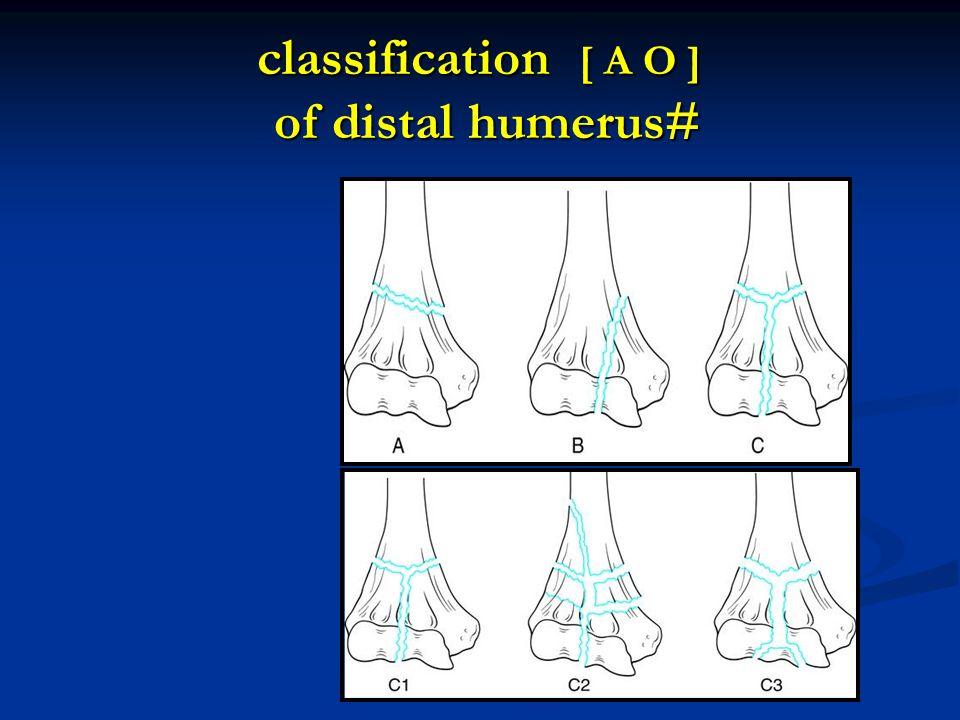classification [ A O ] of distal humerus#